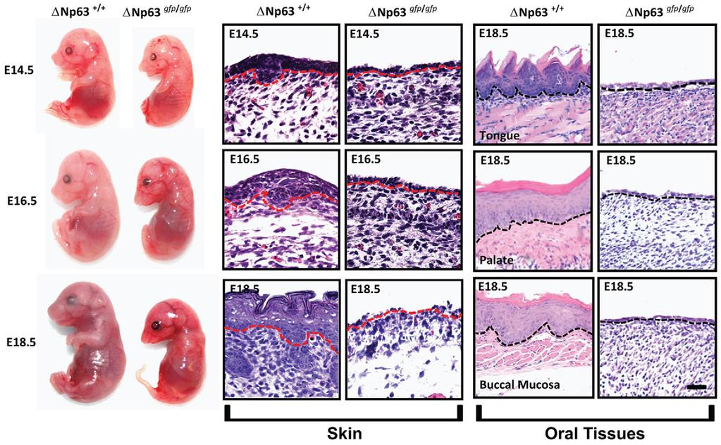 774 Development 139 (4) Fig. 1. Gross morphology and histological analysis of mice with a targeted deletion of DNp63.