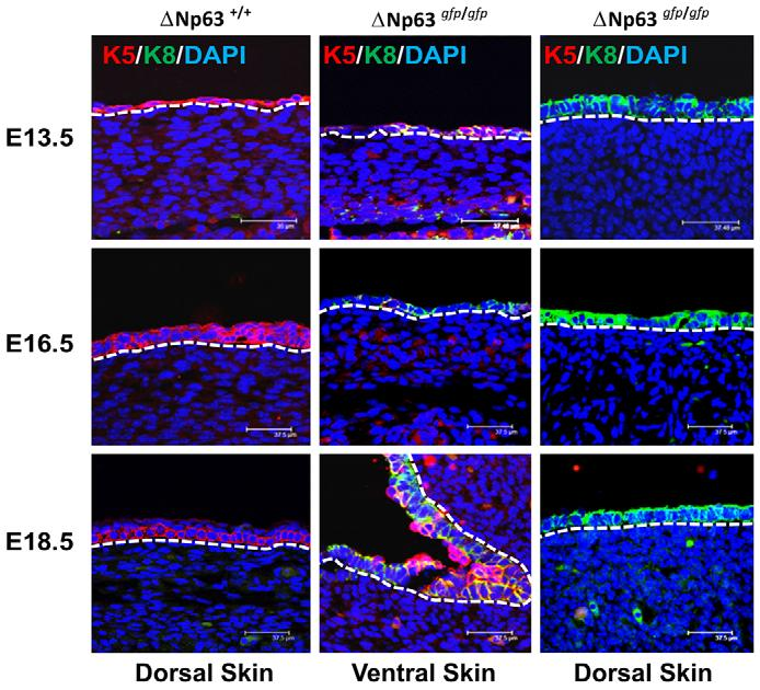 DNp63 and epithelial development 775 loss of DNp63 in epithelial morphogenesis, embryos were harvested at various stages of development beginning at E14.5. Heterozygous DNp63 gfp/+ mice taken at all time points examined appeared indistinguishable from wild-type littermates.