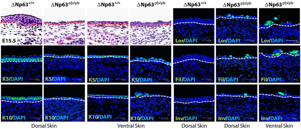 776 Development 139 (4) Fig. 3. Accelerated keratinocyte differentiation in the absence of DNp63. Dorsal skin sections of E15.