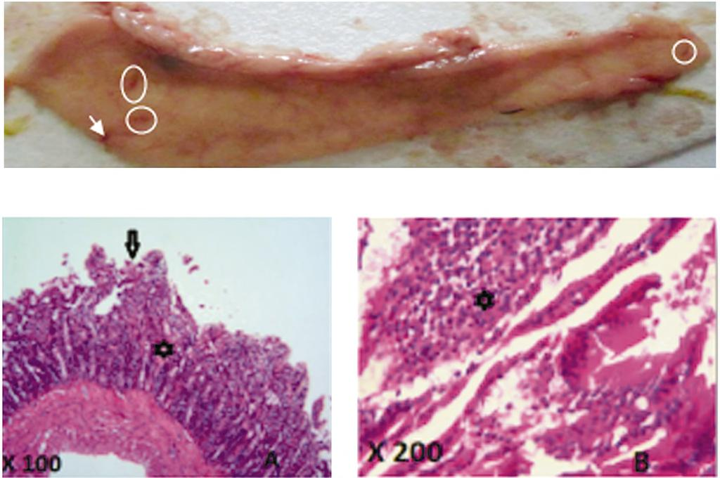 Hader I. Sakr, et al. 5053 Fig. (12): Macroscopic representation of duodenal mucosa of leptin treated group. Fig. (13): Serial sections examined from the duodenal wall of (Leptin-treated group) revealed disorganized villous architecture.