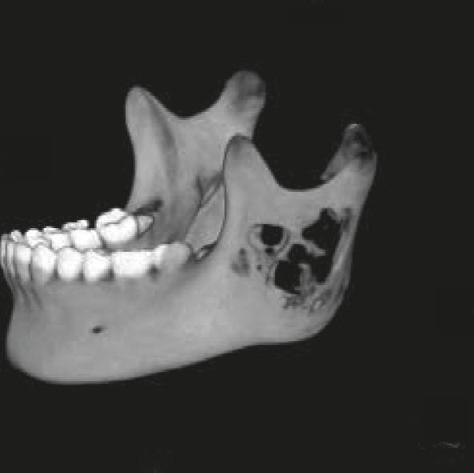 revealed a well-defined mass involved the region distal to the left first molar and extended to the mandibular ramus, but not the left condyle.