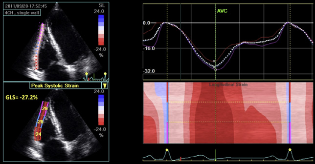 thromboendarterectomy or heart transplantation Color tissue Doppler S wave GLS Peak systolic velocity of tricuspid annulus by color DTI (cm/sec) Sampling is performed after image acquisition Allows