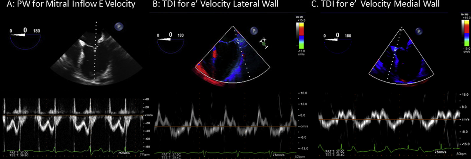 44 Porter et al Journal of the American Society of Echocardiography January 2015 print & web 4C=FPO Figure 2 Transesophageal echocardiographic sampling volume position for monitoring E-, e 0 -, and