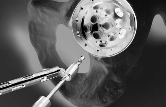 8 Zimmer Trilogy IT Acetabular System Surgical Technique Screw Insertion If Screw placement is desired: Carefully following these steps for Screw insertion can help to minimize Screw push-through or