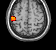Back to example fmri data: Smoothness FWHM: 3*3*2.9 voxels 23914 voxels > 809.