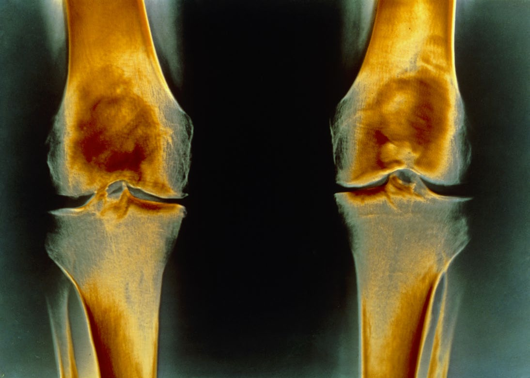 In osteoarthritis, cartilage becomes thin and stiff, and the theory is that glucosamine supplements might help supply the materials needed to rebuild it.