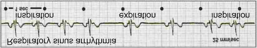Respiratory sinus arrythmia (RSA) Earliest known type of HRV (Hales, 1733) Fast heart rate (tachycardia) during inspiration Slow heart rate (bradycardia) during expiration.