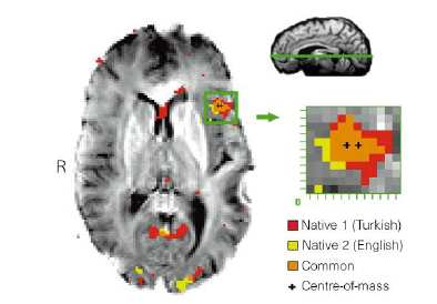 In listening tests, an fmri revealed common areas of activation in the left temporal lobe for all subjects when the native language was used.