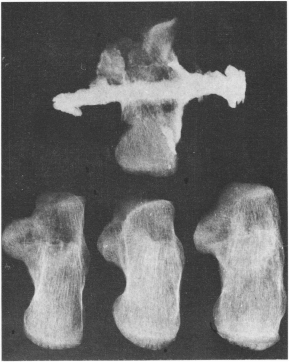 PLATE 7 : Distal bones of left tibia