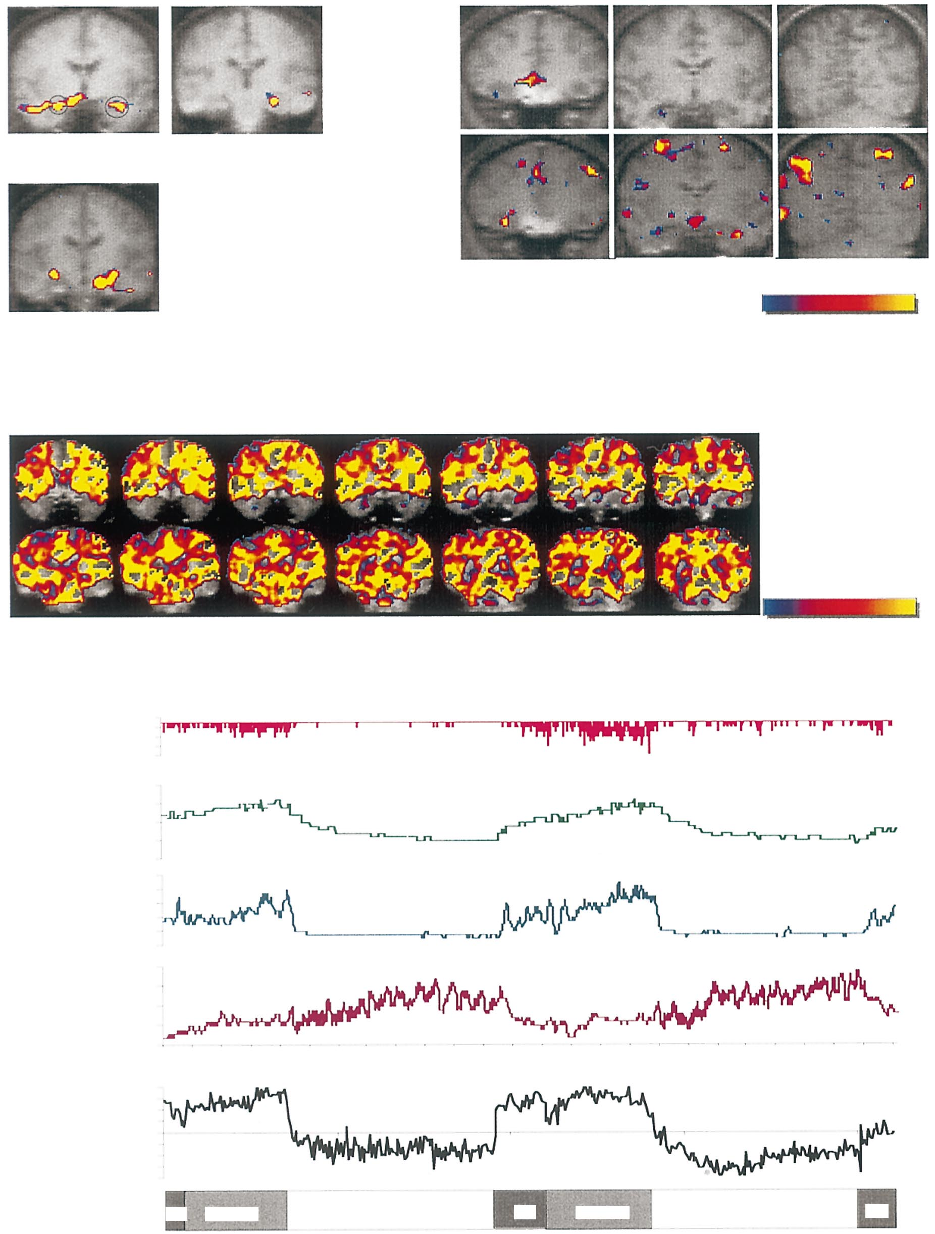 FUNCTIONAL BRAIN IMAGING OF THE RELAXATION RESPONSE (a) Signal increases during meditation Meditation vs Control Amygdala Hippocampus (b) Signal increases with practice Early vs Late Scan 1 n 5 6 mm