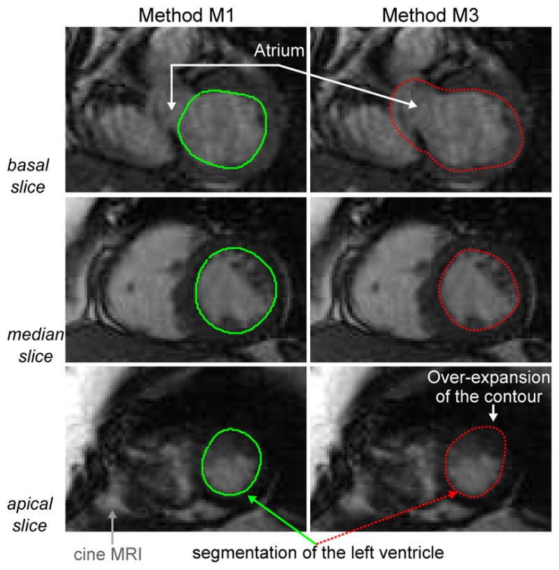 11. Constantinidès C, Chenoune Y, Mousseaux E, Frouin F, Roullot E. Automated heart localization for the segmentation of the ventricular cavities on cine magnetic resonance images.