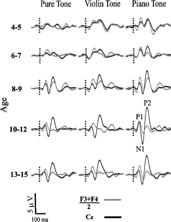 Critical Periods for Music Acquisition 265 period of deprivation, N1 never developed after cochlear implantation.