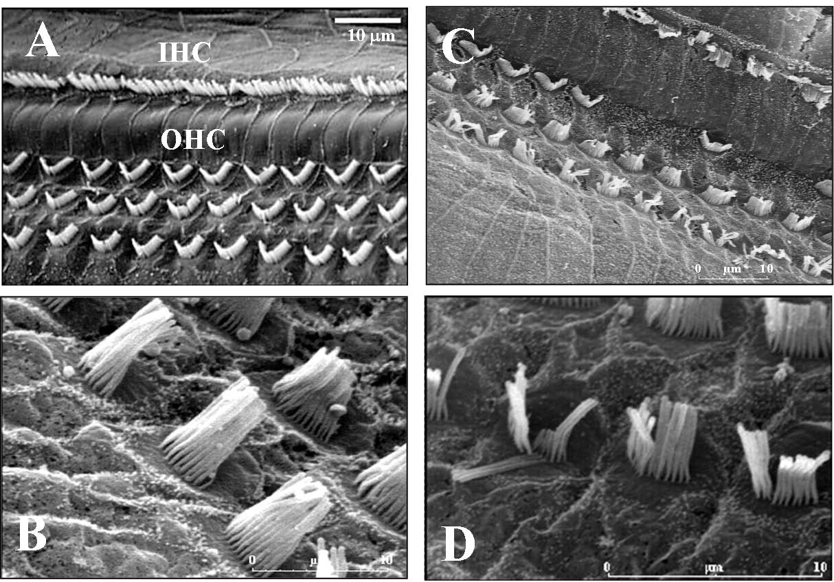 Magnesium in the Central Nervous System Chapter 10 Figure 2. A, B: normal aspect of the hair cells and their stereocilia, observed with scanning electron microscopy.