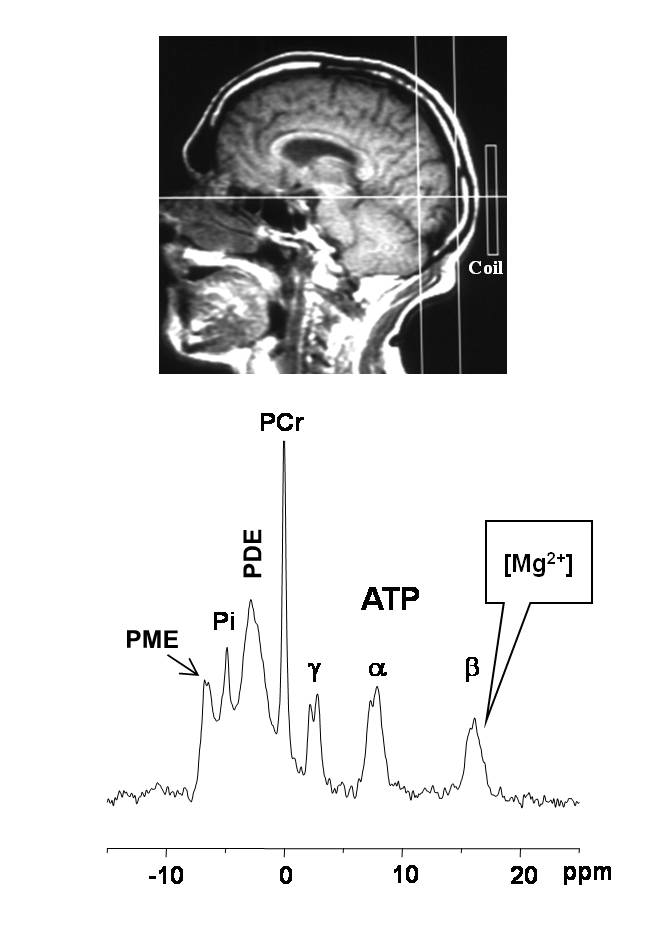 Magnesium in the Central Nervous System Chapter 1 Figure 2. Concentration of the major ATP- containing species present in solutions mimicking the cell brain cytosol plotted versus pmg.
