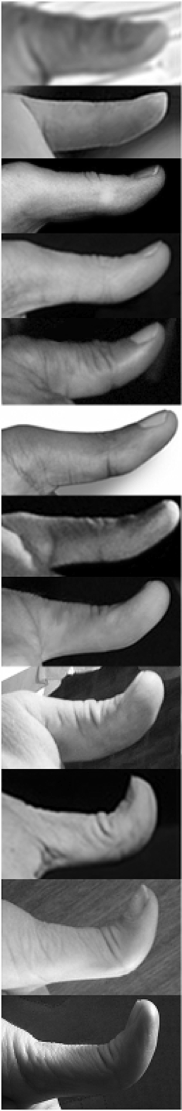 Glass and Kistler (1953) did a similar study, except they used a protractor held against the outside of the thumb to measure the thumb angle, and obtained the following results: Distribution of thumb