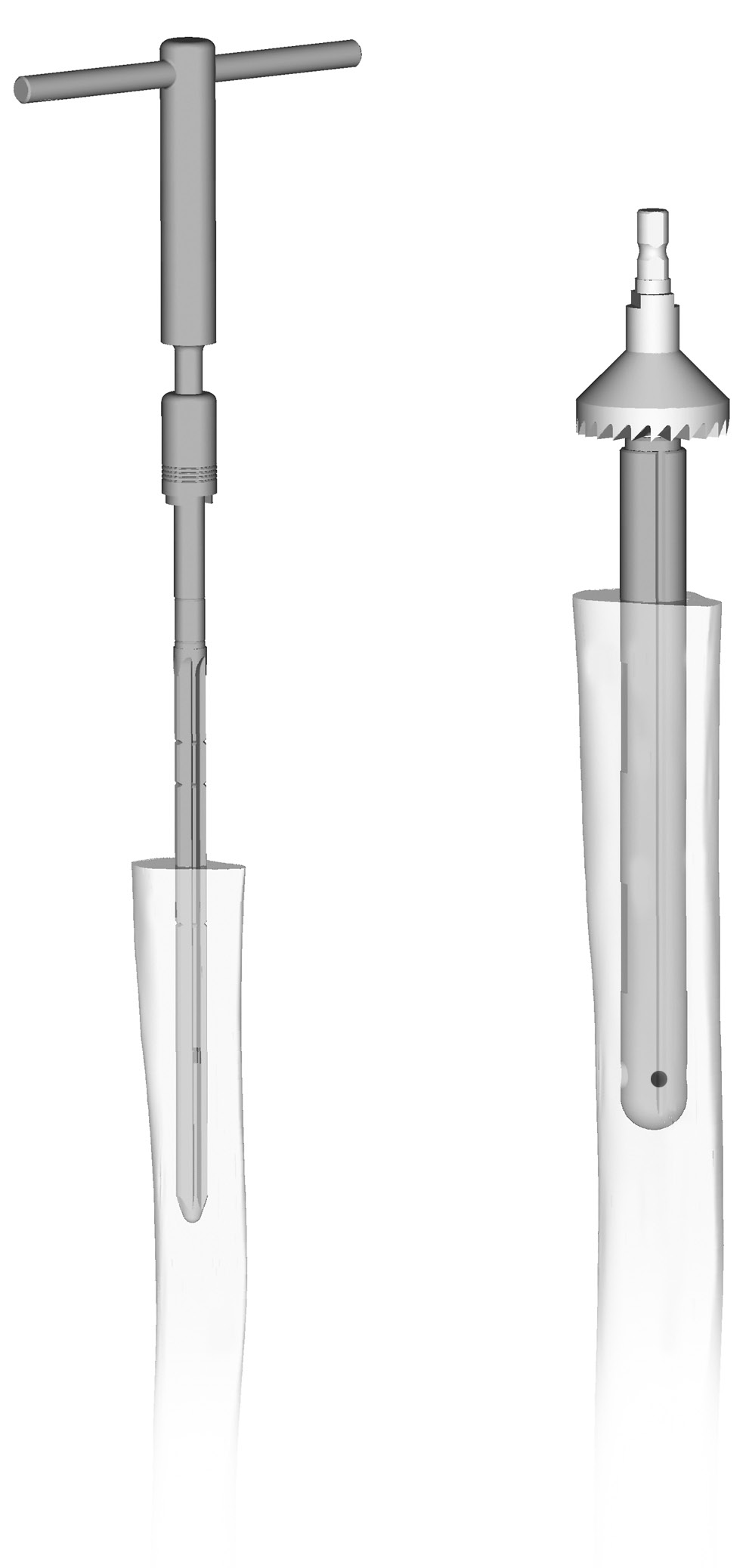 24 Zimmer MOST Options System Surgical Technique Tibial Preparation Straight Stem Preparation The 190mm straight stem options are shown in Tables 4 and 5.