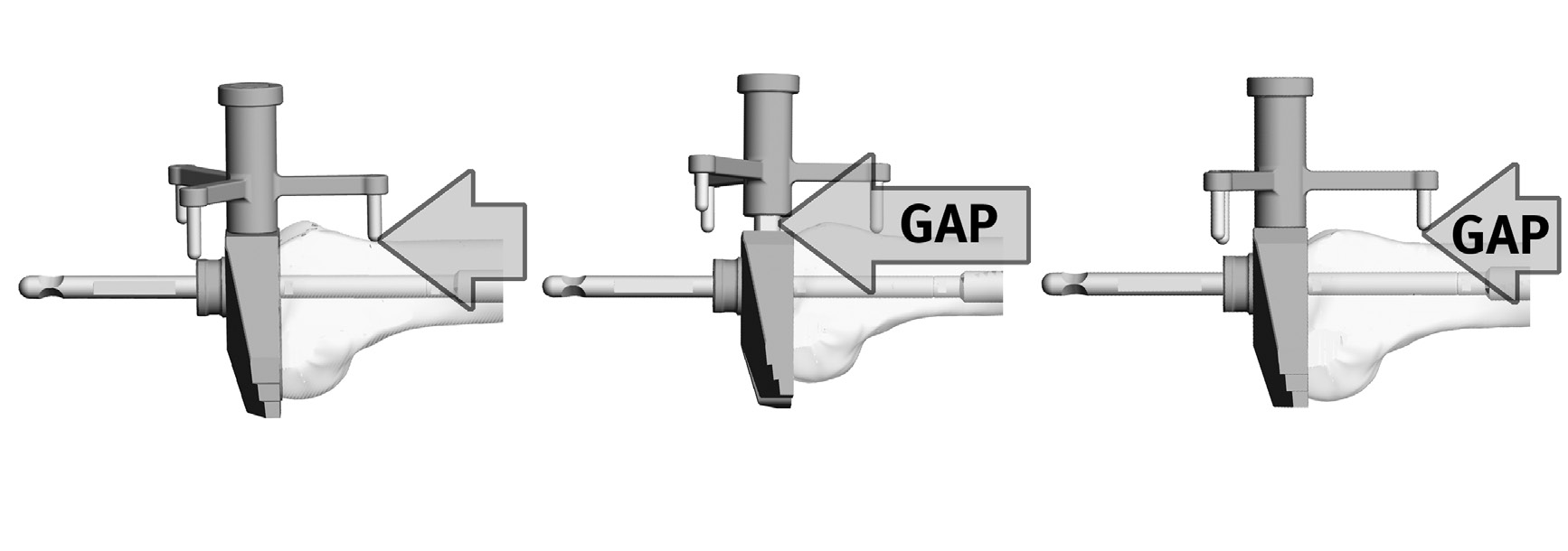 Zimmer MOST Options System Surgical Technique 29 Femoral Sizing a Guide b c Trial Stem Adapter Correct Sizing Under Sized Over Sized Fig.