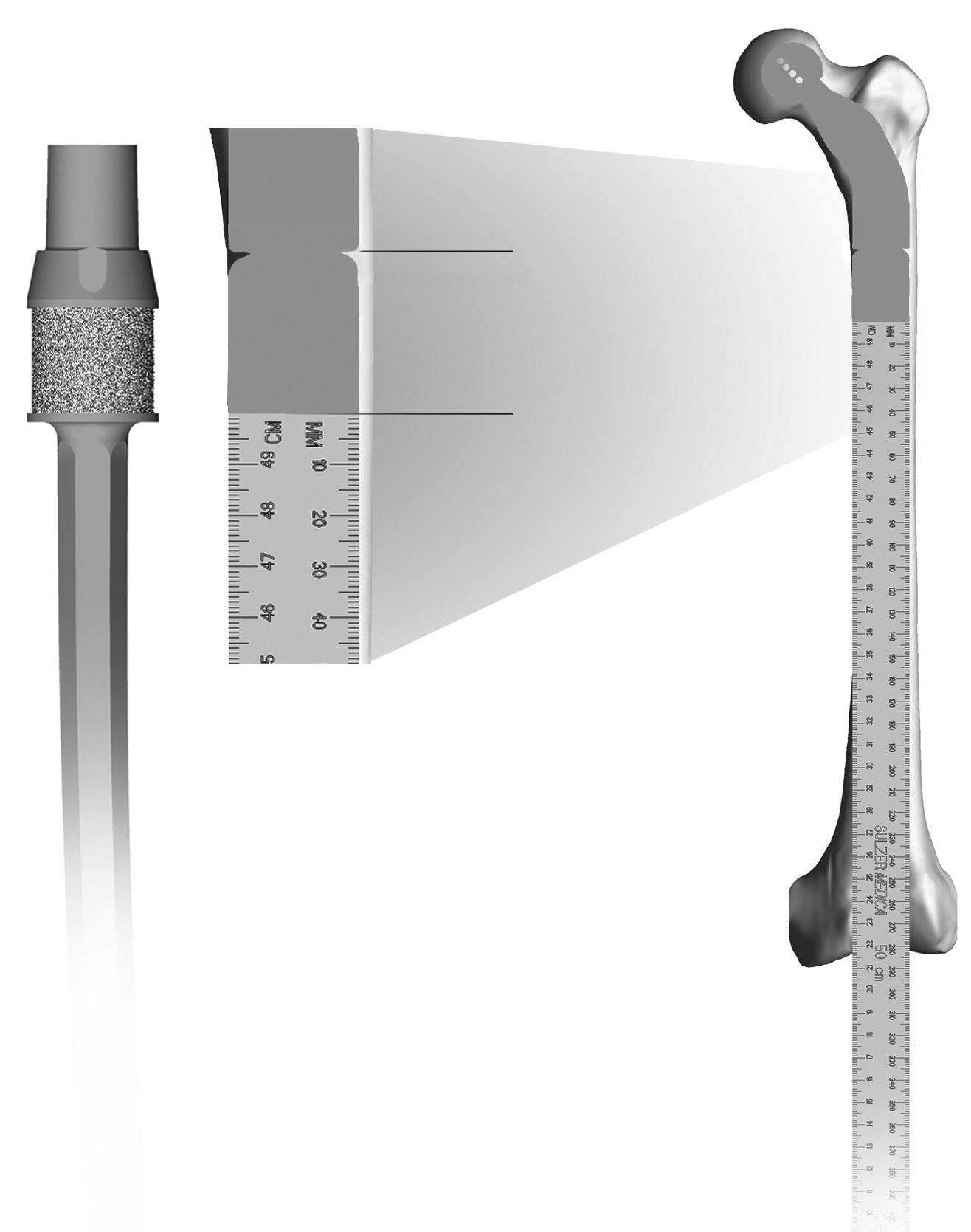 Zimmer MOST Options System Surgical Technique 39 Femoral Measurement and Resection Use the Proximal Femoral Ruler (Fig.