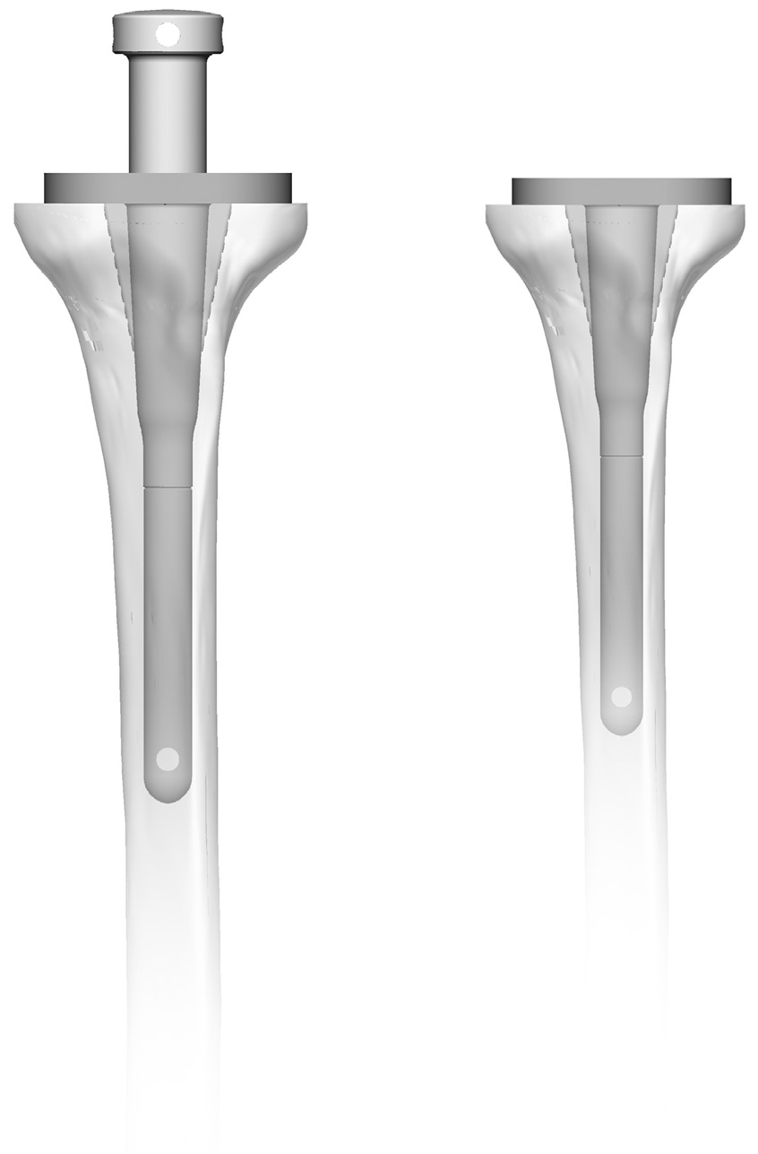 72 Zimmer MOST Options System Surgical Technique Proximal Tibia Sizing and Drilling Select the appropriate size tibial profile by using the Tibial Baseplate Sizer/ Reamer Guide and Baseplate Sizing