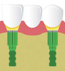 Adhesive bonding methods for screw-retained bridge restorations The titanium base bridge is used exclusively for multi-unit screw-retained bridge restorations.