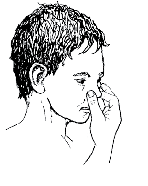 Where There Is No Doctor 2013 83 HOW TO STOP NOSEBLEEDS 1. Sit quietly and upright. 2. Blow the nose gently to remove mucus and blood. 3.