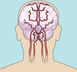 1. Understanding STROKE The brain is the control centre of your body. It controls how you think, feel, communicate and move. Knowing how your brain works can help you understand your stroke.