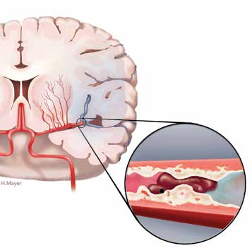 What happens during a stroke A stroke happens when blood stops flowing to any part of your brain. This interruption causes damage to the brain cells which cannot be repaired or replaced.