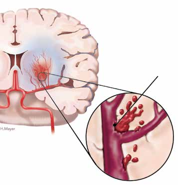 Transient ischemic attack (TIA) A transient ischemic attack (TIA) is caused by a small clot that briefly blocks an artery. It is sometimes called a mini-stroke or warning stroke.
