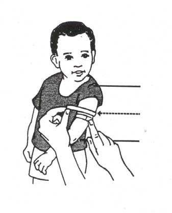 ANNEX 4: USING MIDARM CIRCUMFERENCE TO DETECT MALNUTRITION When a child is about 1 year old, there should be quite a lot of fat under the skin of the arms.