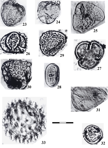 The palynomorphs from surface sediments... 61 Figs. 23-33. LM. 23-25, 31. Cyperaceae. 26, 27. Gunneraceae (Gunnera type). 28.