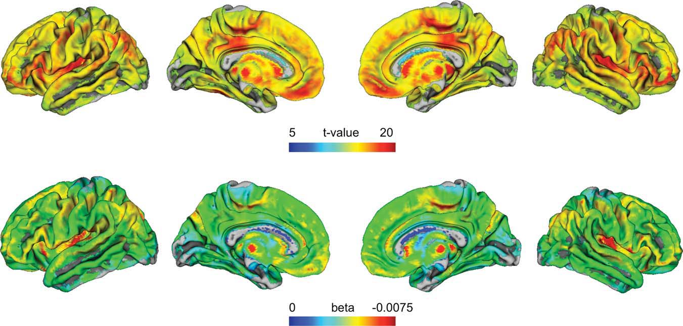 The t-values (upper row) indicate brain regions of significant linear agerelated decreases in the GLM. Non-colored (gray) areas were not significant.