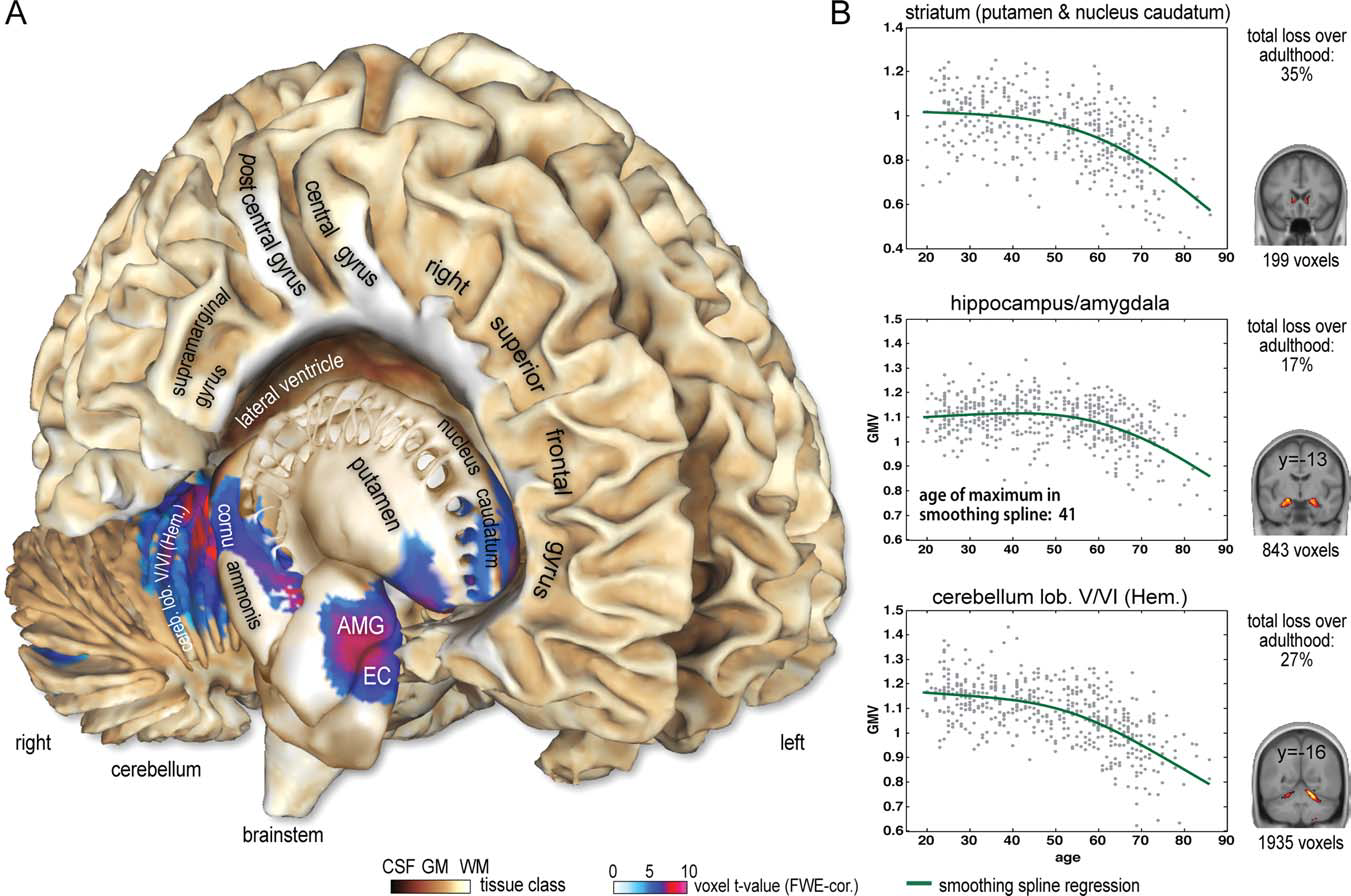 r Brain Structural Trajectories Over the Adult Lifespan r contrast to ROI-based methods, our voxel-based approach is able to detect even very small grey matter regions that exhibit nonlinear