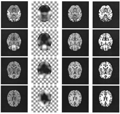 ZHANG et al.: SEGMENTATION OF BRAIN MR IMAGES 55 Fig. 10. Four slices of a 3-D MR volume image with real bias field.