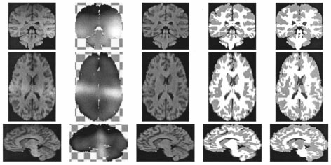 56 IEEE TRANSACTIONS ON MEDICAL IMAGING, VOL. 20, NO. 1, JANUARY 2001 Fig. 11. Data set I from the IBSR. The three rows show the image in coronal, transverse, and sagittal view respectively.