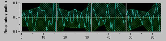 bigger stripped surface = high p tone Figure 18: R-R normalized series: high sinus respiratory arrhythmia amplitude 5.