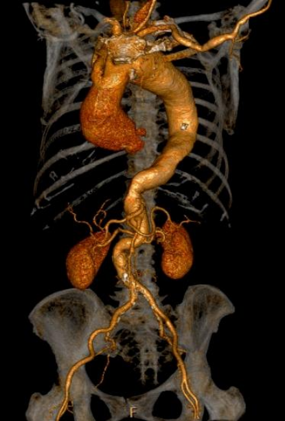 a) b) An aneurysm is local and permanent dilation of a