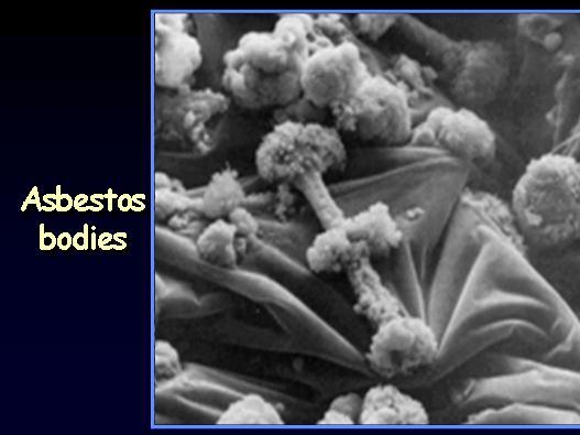 Etiology of MPM Asbestos- Blue and White Fibers-70-80%