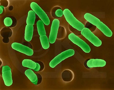 Problem Indicators Biological Contaminants Biological contaminants include organisms such as bacteria, algae, fungi, molds, viruses, protozoa and parasitic worms.