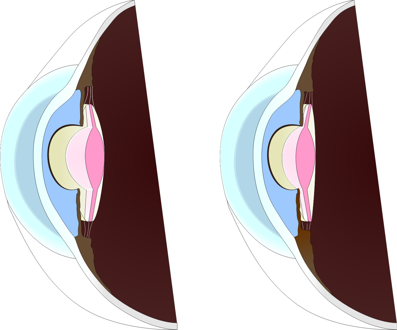 This intraocular lens is also a toric model as one can see at the markings in the periphery of the optic. Figure 6.