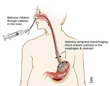 proven ineffective and endoscopic management is unavailable or has failed. Typically, physicians use one of three commercially available balloons to tamponade bleeding esophageal or gastric varices.