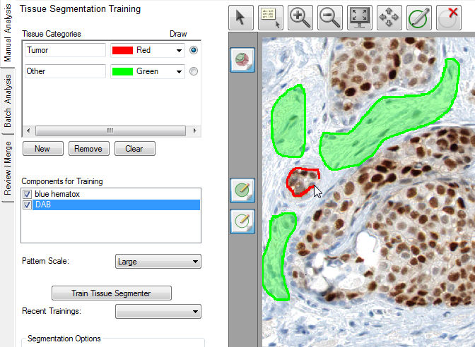 10.2 Drawing Training Regions Training regions teach the tissue segmenter which cells should be included in each tissue category.