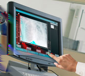 DR systems, Agfa HealthCare decided to enter the General Radiology DR segment. Digital Radiography Product Portfolio examples MUSICA2 CR 30-X A compact CR solution, easy to install, use and maintain.