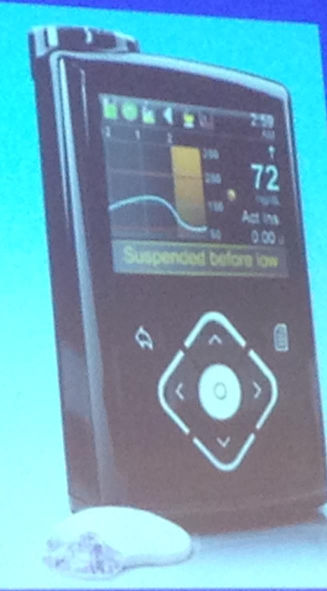 Medtronic MiniMed 640G (predictive suspend) European launch by October 31, 2014; no US timeline Predictive low glucose suspend