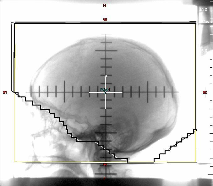 PROPHYLACTIC CRANIAL IRRADIATION (PCI) SCLC often spreads to the brain Used to treat