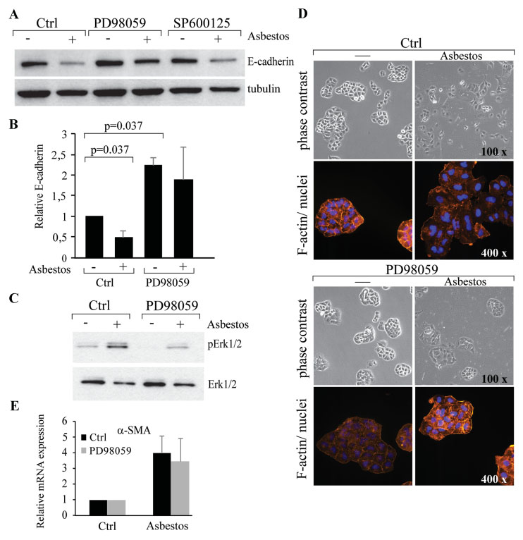 Fig. 7. MAPK/Erk1/2 pathway contributes to asbestos induced loss of epithelial phenotype in A549 cells.