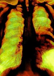 Asbestos-Related Diseases ASBESTOSIS - AFFECTS BREATHING, LEADING TO DISABILITY, AND CAN CAUSE DEATH LUNG CANCER - USUALLY LEADS TO DEATH MESOTHELIOMA - CANCER OF THE CELLS THAT