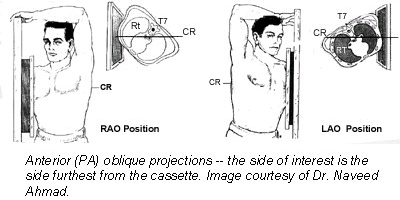 (Fig. 3) Chest position Oblique positions are named according to the chest part closest to the cassette.