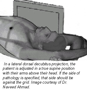 (Fig. 5) Reprinted from Merrill s Atlas of Radiographic Positions and Radiologic Procedures, 9th edition, Ballinger and Frank, page 550 (figure 10-72), copyright 1999 Mosby, with permission from