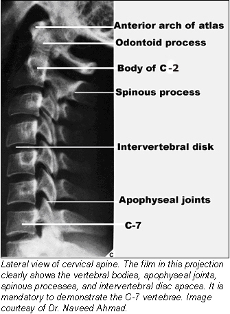spinous processes of C-2 to C-7 are fully visualized, and the intervertebral disk spaces and prevertebral soft tissues can be adequately evaluated. (Fig.