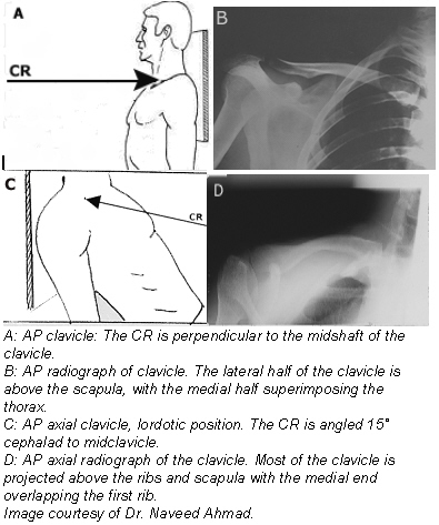 (Fig. 3) Positioning for an AP axial projection of the clavicle 3. 4. 5. Stand or seat the patient 1 foot (30 cm) in front of the vertical cassette device, with the patient facing the x-ray tube.